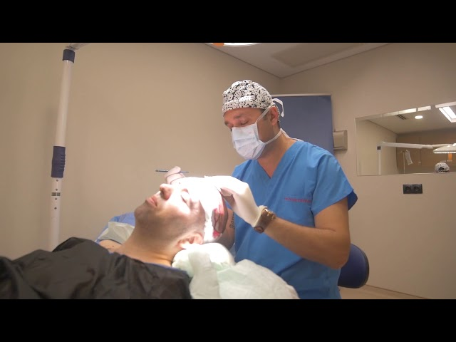 Hair Transplant in Turkey with Capilclinic - Opening channels by Dr. Oguz
