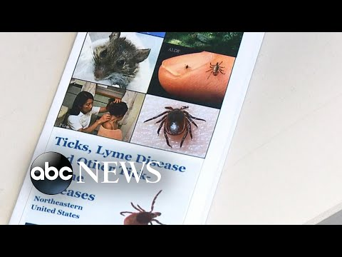 Health officials warn this is the worst year for ticks
