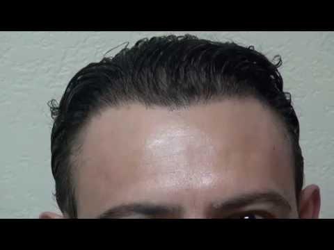 hair-loss-transplant-receding-hairline-restoration-dr.-diep-www.mhtaclinic.com