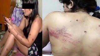 Image result for cigarette butt gang raped Pune