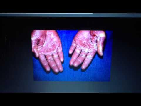 Staphylococcus aureus (toxin-mediated)