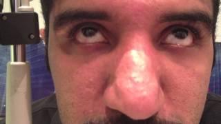 saccadic dysmetria