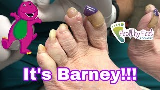Cutting Painted Nails | Healthy Feet Podiatry of Tampa, Wesley Chapel & Brooksville