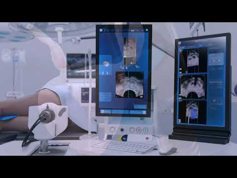 focal-one---traitement-pas-à-pas-du-cancer-localisé-de-la-prostate-par-hifu