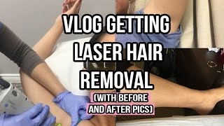 Getting Laser Hair Removal Vlog After Pics