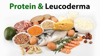 Protein & White Patches/Leucoderma