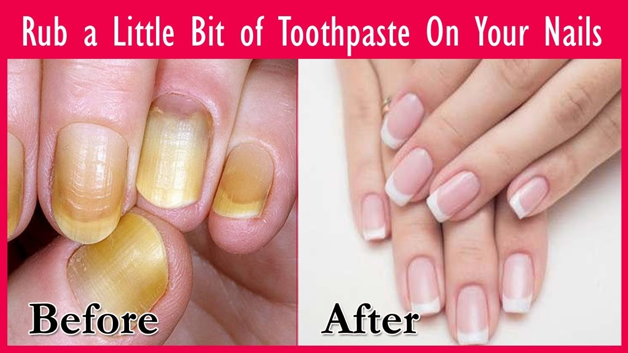 Rub A Little Bit Of Toothpaste On Your Nails See The Magic Brighter Stronger