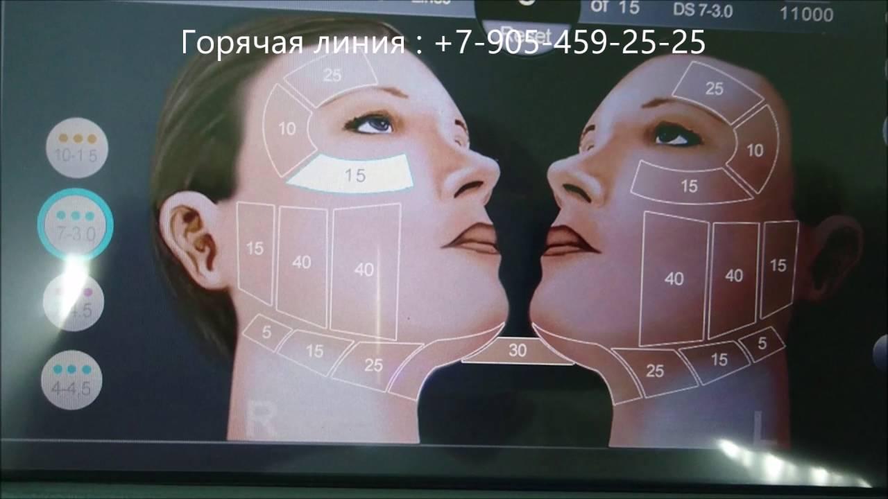 Альтера систем (ulthera system) это уникальная методика позволяющая осуществить существенную подтяжку лица, без хирургического.