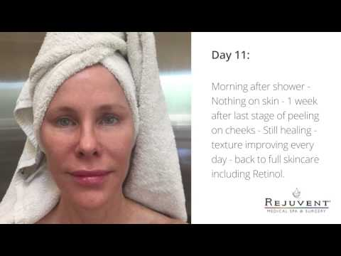 Reverse Sun Damage with  Photodynamic Therapy (PDT)  Levulan with FotoFacial