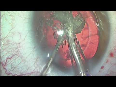 Imagen de Dr. José Joaquín Muñoz: Cirugía de Vista Cansada o presbicia