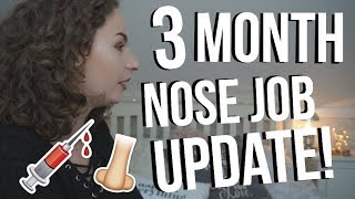 3 MONTH NOSE JOB UPDATE!