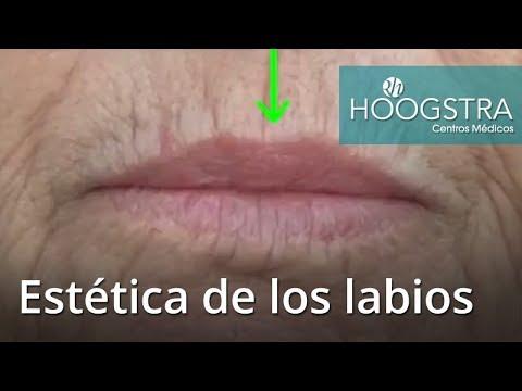 Estética de los labios (18066)