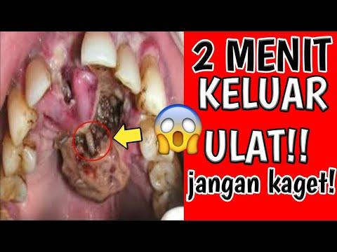 cara-mengobati-sakit-gigi-berlubang-dengan-cepat