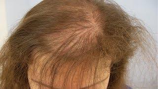 Супер маска від випадіння волосся