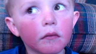 Allergic To Cold: Colorado Children Have Rare Condition
