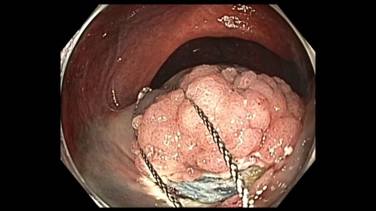 Anal and rectal polyp