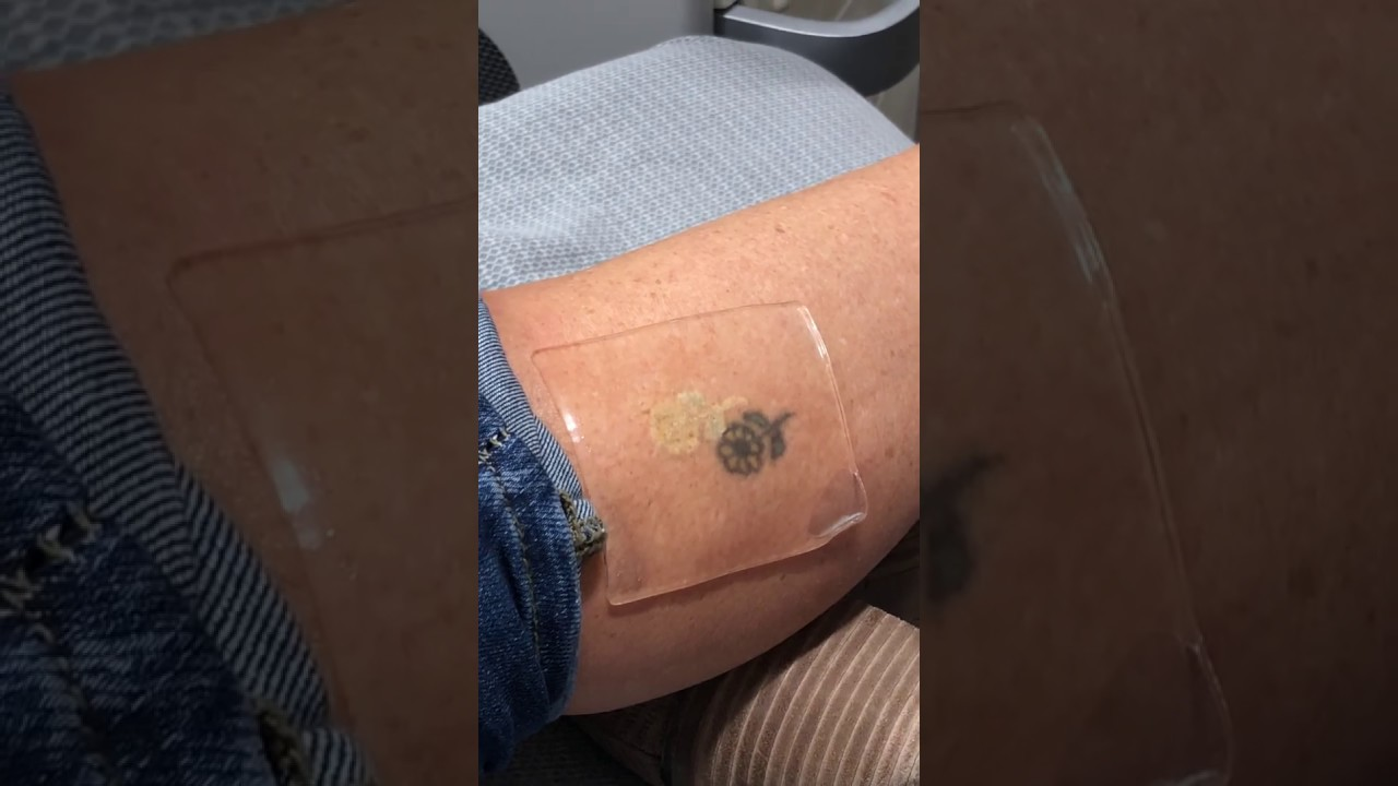 Laser Tattoo Removal Cost Okc