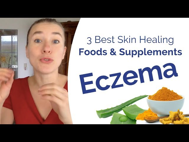 Eczema Treatment - The 3 Best Foods & Supplements to Boost Your Skin Healing