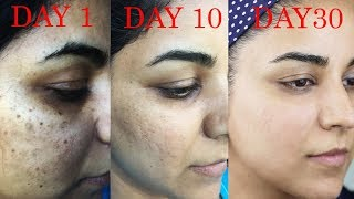 How I Got Rid of Dark Scars, Hyperpigmentation, Pimples/Acne