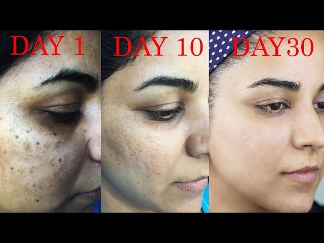 How I Got Rid Of Dark Scars Hyperpigmentation Pimples Acne Youtube