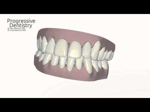 Progressive Dentistry - Invisalign Corrective Procedure Example - Jennifer