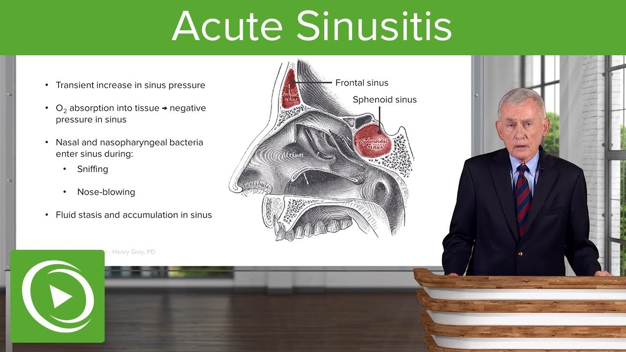 Acute Sinusitis – Infectious Diseases | Lecturio