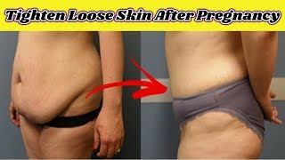 How To Tighten Loose Skin After Pregnancy #NaturalRemedies