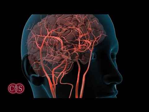 Symptoms of Stroke and Migraine | Cedars-Sinai