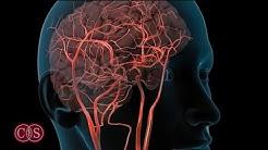 Symptoms of Stroke and Migraine | Cedars-Sinai