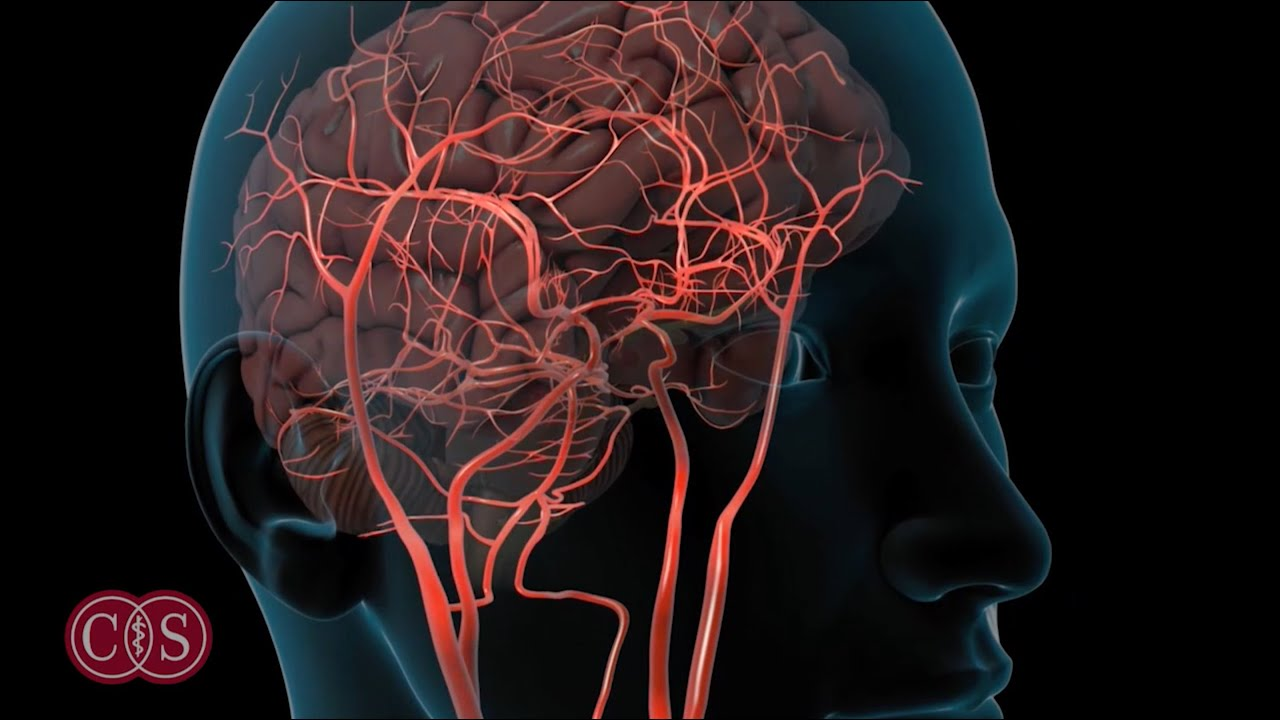 stroke symptoms youtube  Symptoms of Stroke and Migraine | Cedars-Sinai - YouTube
