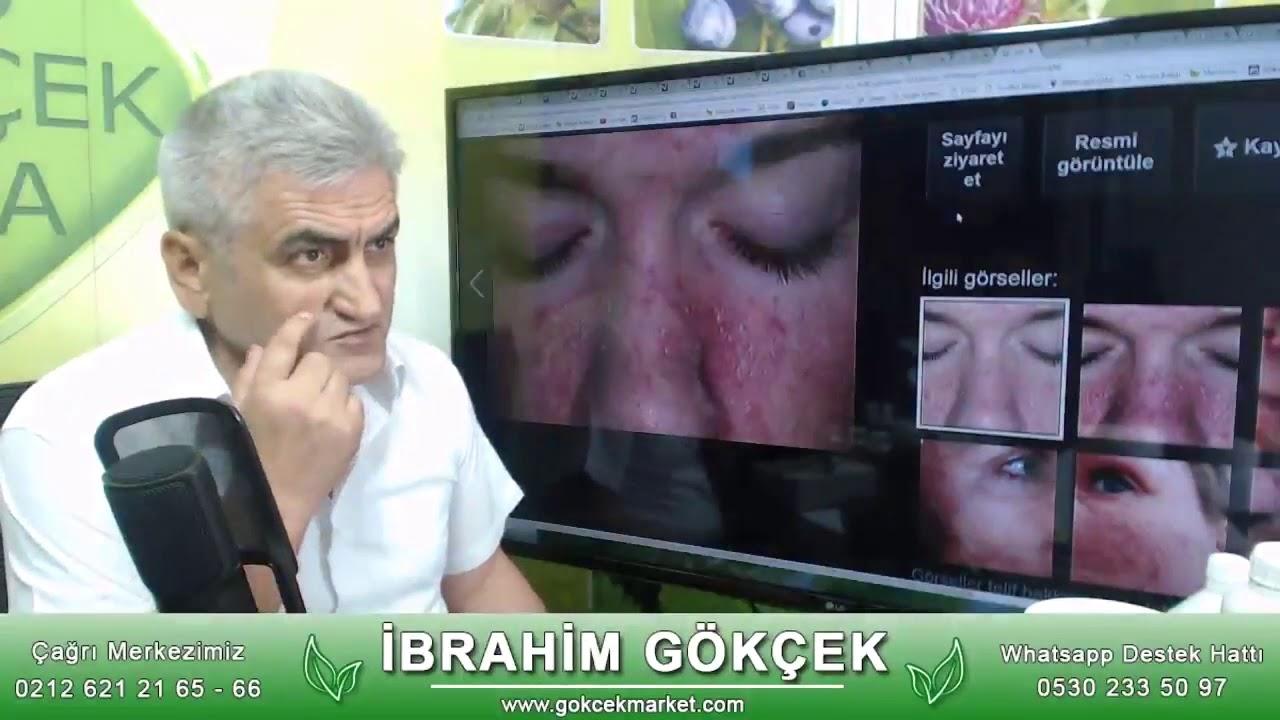 Seboreik Dermatit Nasıl Tedavi Edilir