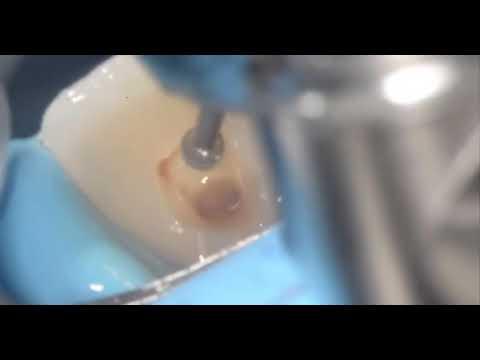 internal-bleaching-of-teeth-step-by-step