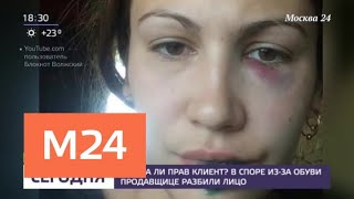 В споре из-за обуви продавщице разбили лицо - Москва 24