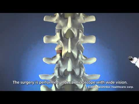 Treatment of lower back pain (MD Therapy)