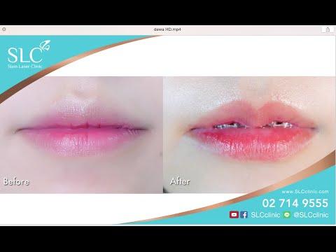 รีวิวศัลยกรรมปากกระจับ ปากบาง Babii lips น้องเอมมี่ สุนันทา เดวา