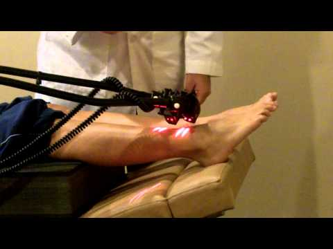 cold-laser-therapy-treatment-for-neuropathy-caused-by-diabetes