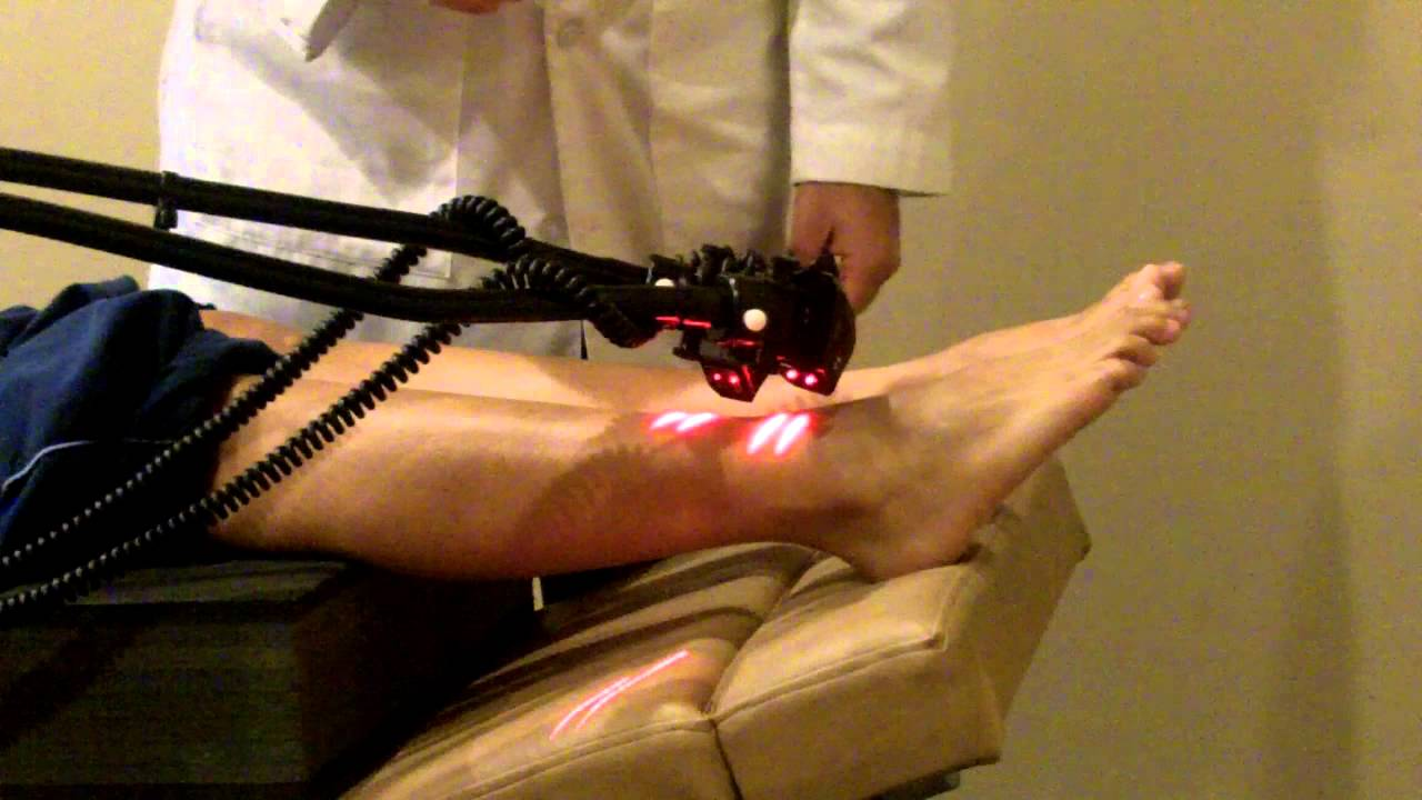 Cold Laser Therapy Treatment For Neuropathy Caused By