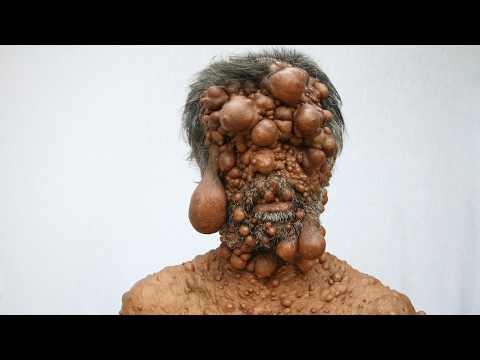 Dad's Entire Body Is Covered In Tumours
