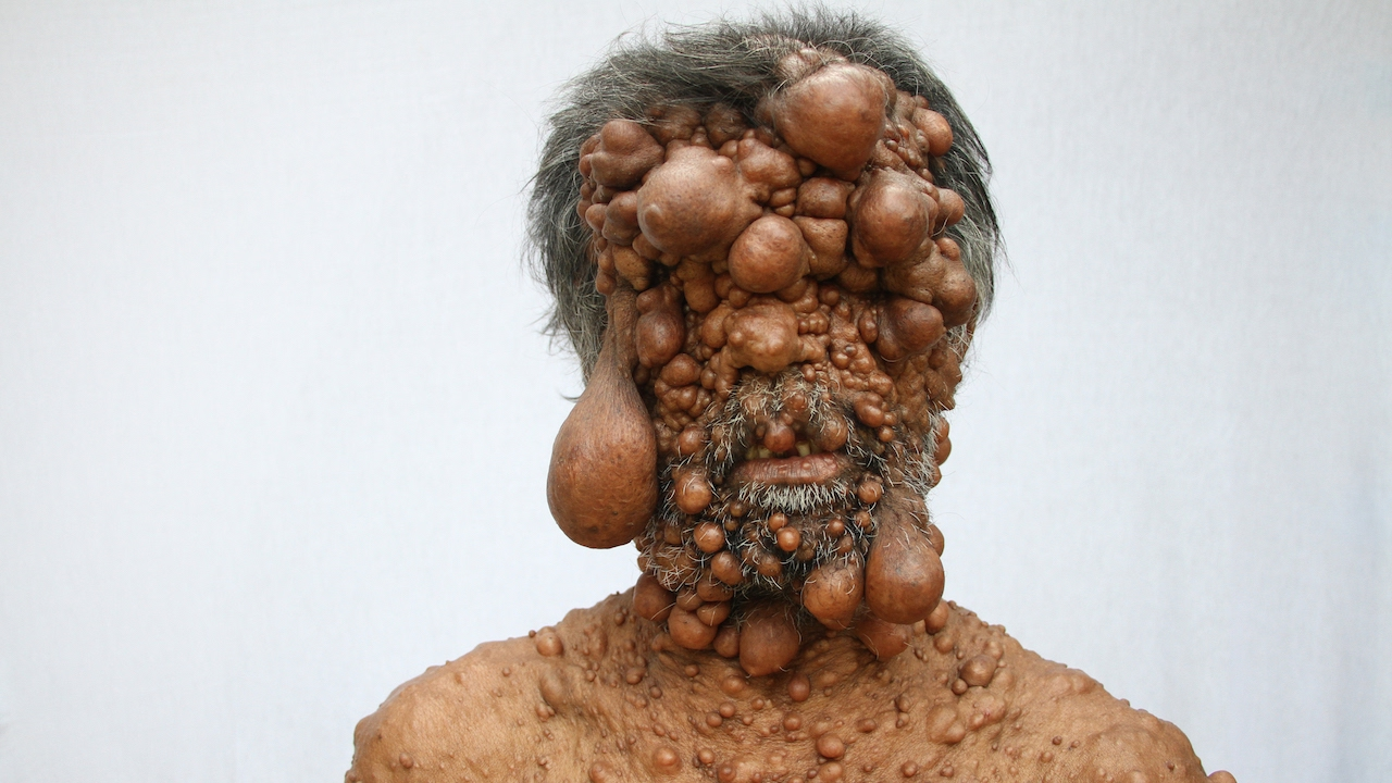 Download Dad's Entire Body Is Covered In Tumours