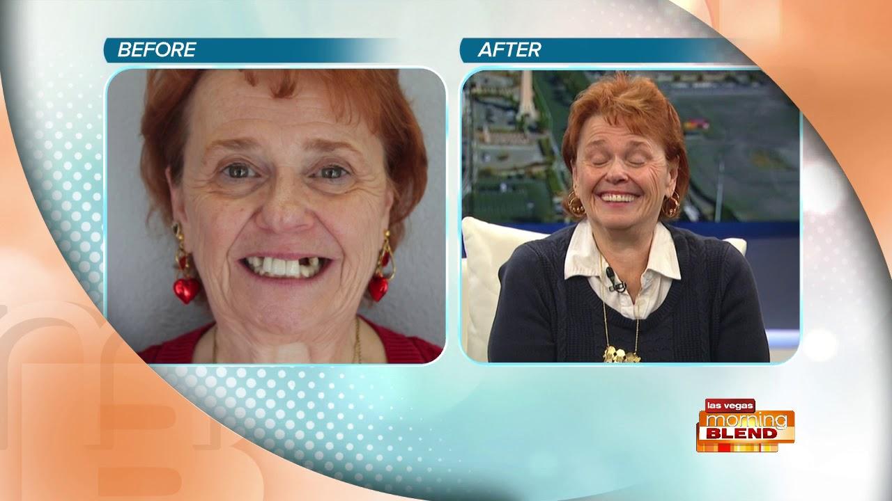 Dental Implants & Sedation Dentistry Henderson & Summerlin NV