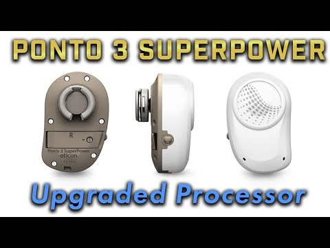 Ponto 3 Superpower - my bone anchored hearing system upgrade from Oticon Medical