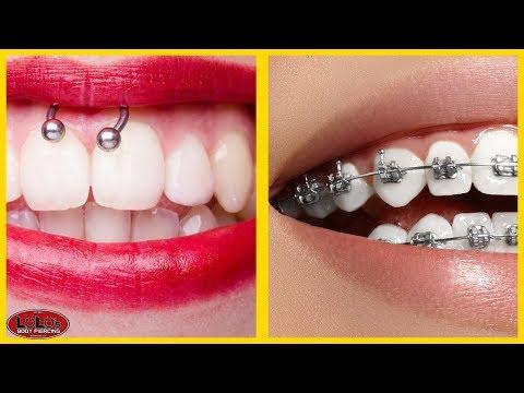Smiley Piercing + Braces Is It Possible??