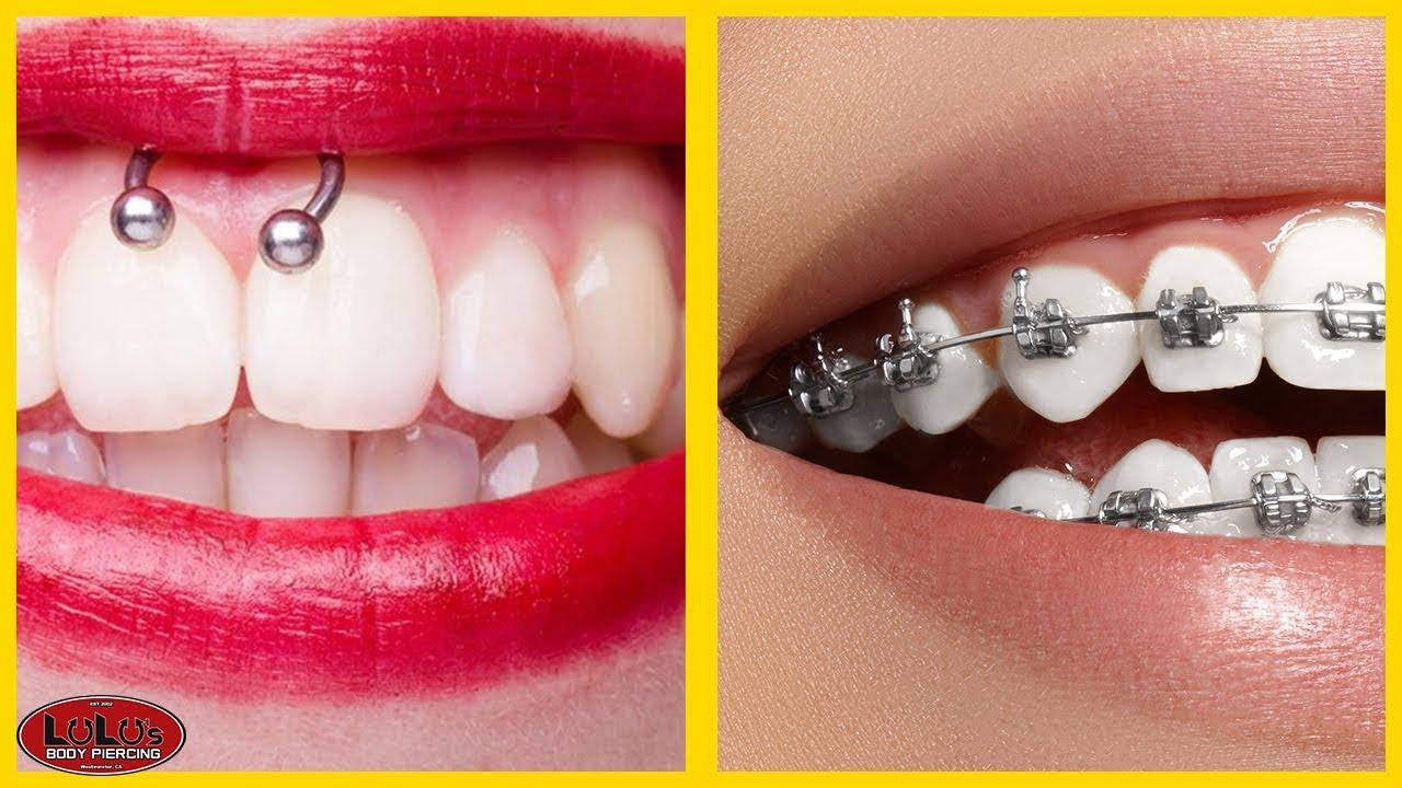 Smiley Piercing Braces Is It Possible