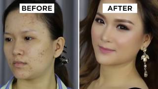 BEAUTY TIPS - Makeup For Acne Skin - Lady9