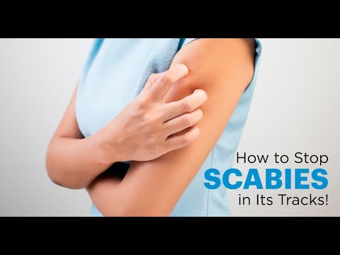 Symptoms of Scabies