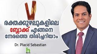 രക്തകുഴലുകളിലെ ബ്ലോക്ക് എങ്ങനെ നേരത്തെ തിരിച്ചറിയാം ? Malayalam Health Tips