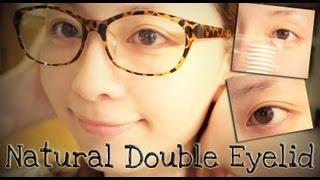 單眼皮大作戰LESSON3♥我的雙眼皮成形術 Thumbnail
