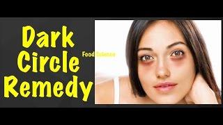 काले घेरों से कैसे छुटकारा पाएं/Magical Home Remedies to Remove Under Eye Dark Circle Hindi