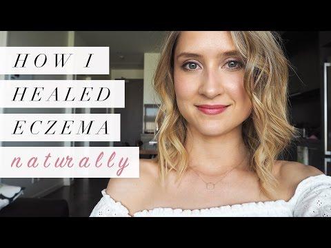 How I Healed Eczema Naturally | My Story