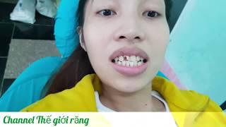Quy trình trồng răng sứ